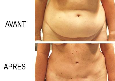 chrurgie ventre